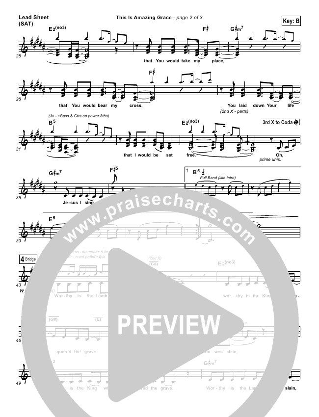 This Is Amazing Grace Lead Sheet (Chris Cauley / North Point Worship)