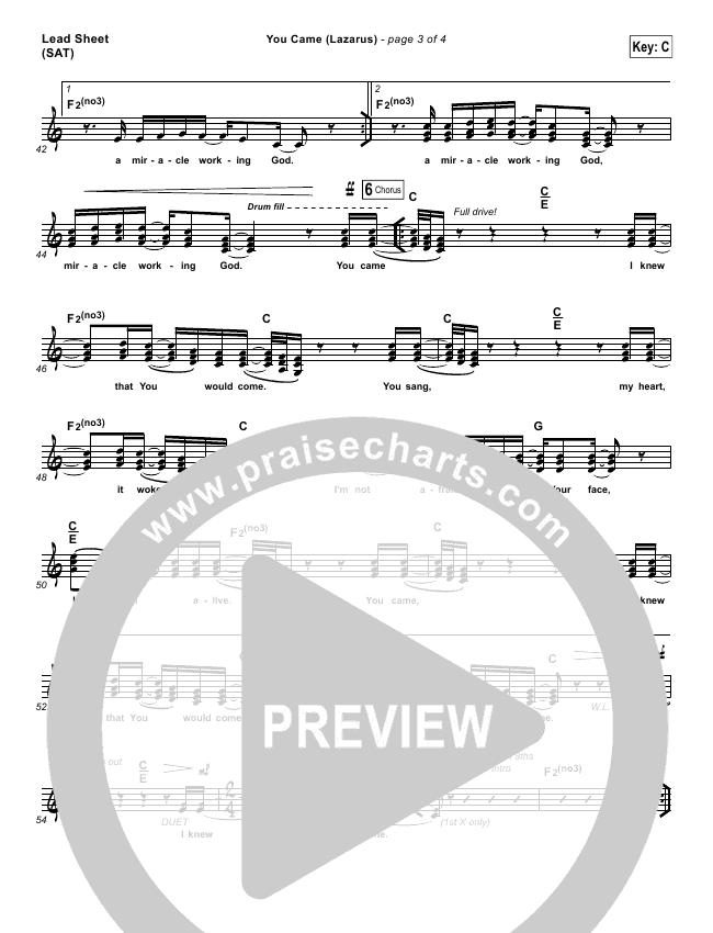You Came (Lazarus) Piano/Vocal Pack (Jonathan David Helser / Melissa Helser)