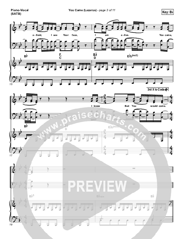 You Came (Lazarus) Piano/Vocal (SATB) (Jonathan David Helser / Melissa Helser)