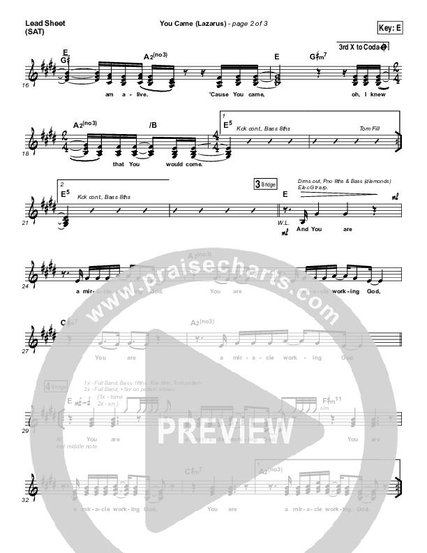 You Came (Lazarus) Lead Sheet (SAT) (Bethel Music / Melissa Helser)